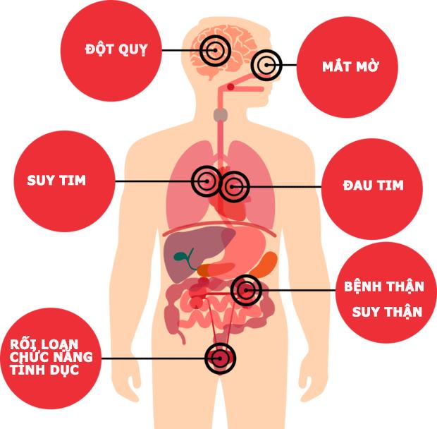 biến chứng của tăng huyết áp