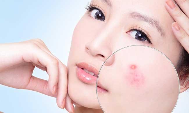Linh chi Hàn Quốc giúp làm đẹp ở phụ nữ