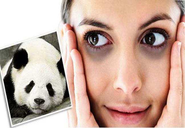 Quầng thâm mắt có thể là do bẩm sinh hoặc xuất hiện trong quá trình sinh hoạt